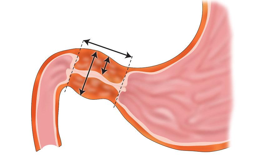 Сжатое отверстие второго сфинктера при пилоростенозе