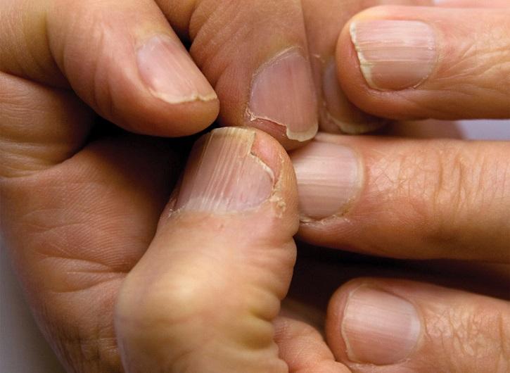 Нехватка витаминов и ногти