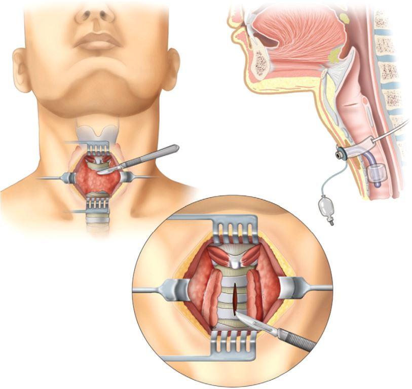 Трахеостомия при тяжелых формах дифтерии