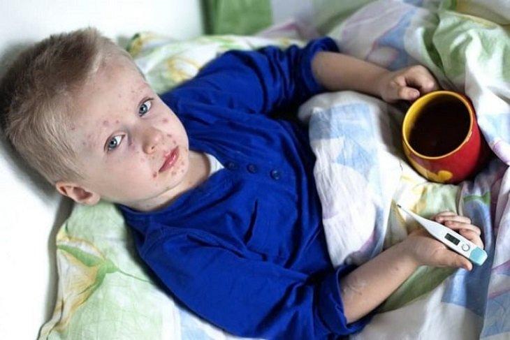 Больному корью ребенку необходим постельный или полупостельный режим