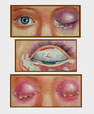 Дифтерия глаза у ребенка