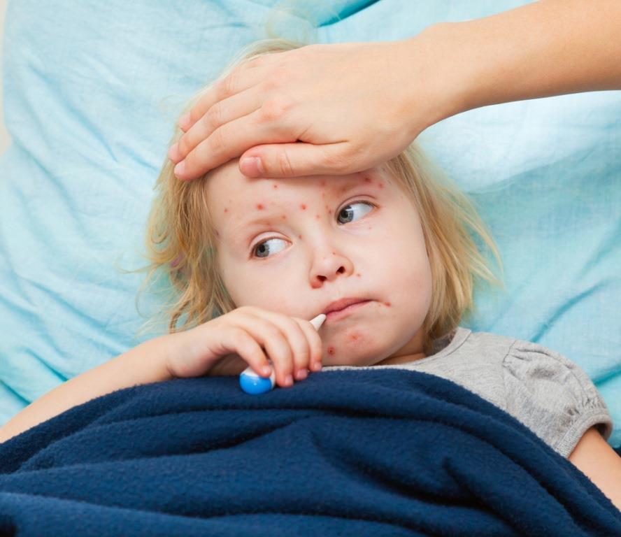 Корь у ребенка сопровождается температурой