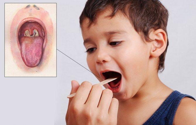 Лечение и профилактика дифтерии у детей