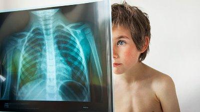 Одним из методов диагностики туберкулеза является флюорография