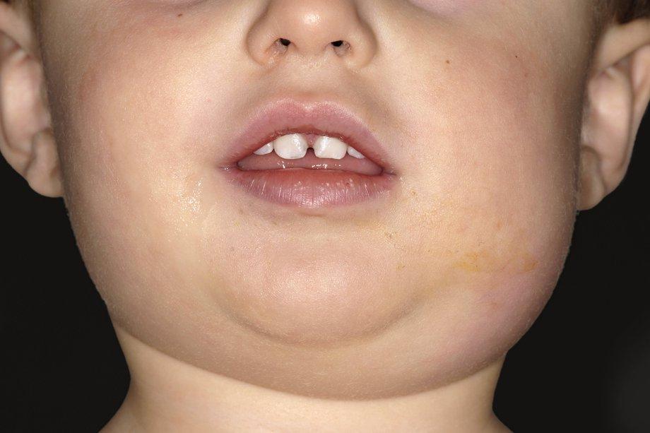 Односторонний отек на лице при паротите у ребенка