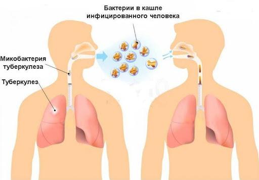Попадание туберкулезной палочки в организм