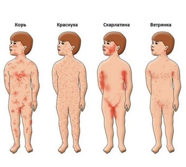 Распространение сыпи по телу при коревой инфекции