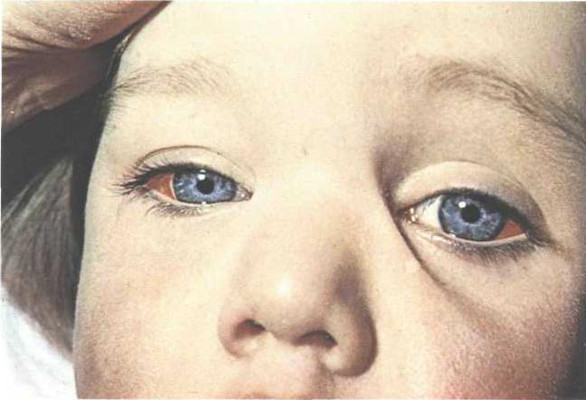 Сильные приступы кашля при коклюше могут вызвать кровоизлияние в склеры глаз