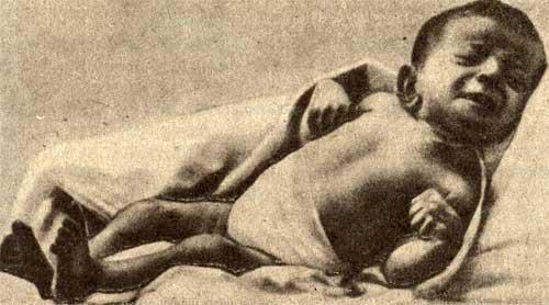 Судорожный приступ при столбняке у новорожденного