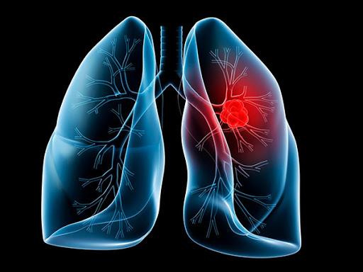Важно вовремя выявить заболевание и начать лечение