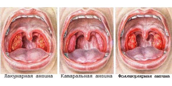 Вид горла при разных видах ангины