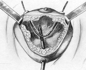 Хирургическое лечение мастита
