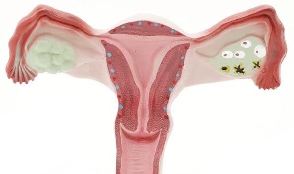 Инфекции в яичнике