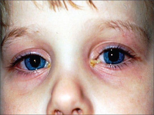 Как проявляется бактериальный конъюнктивит у детей