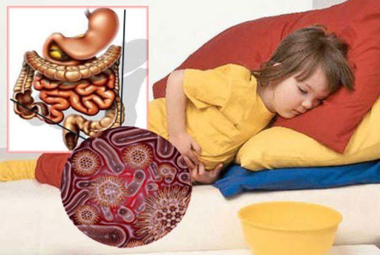 Одним из признаков кишечного гриппа является рвота