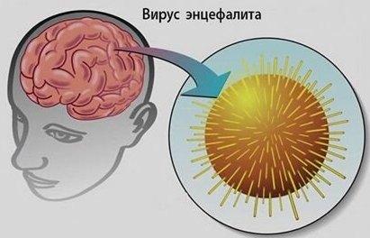 Поражение энцефалитом головного мозга