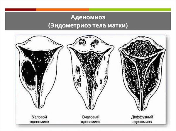 Виды аденомиоза