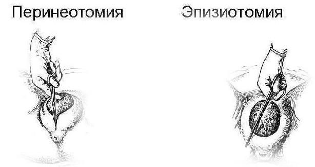 Виды хирургических разрезов