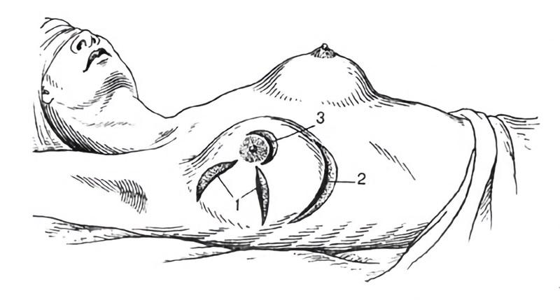 Виды разрезов при операции на груди