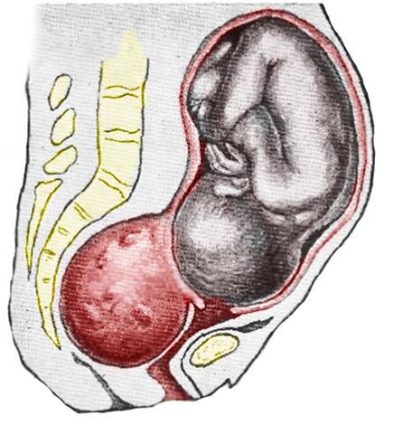 Беременность и миома матки