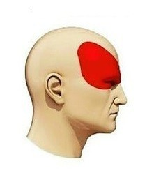 Боль при мигрени