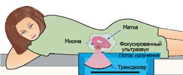 ФУЗ-абляция миомы