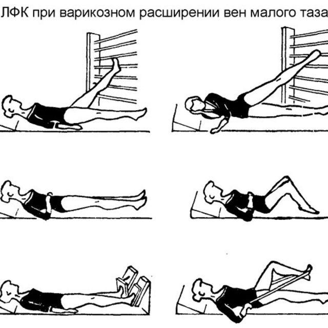 Основные упражнения при варикозе малого таза