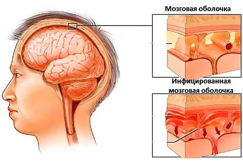 Инфицирование мозговой оболочки
