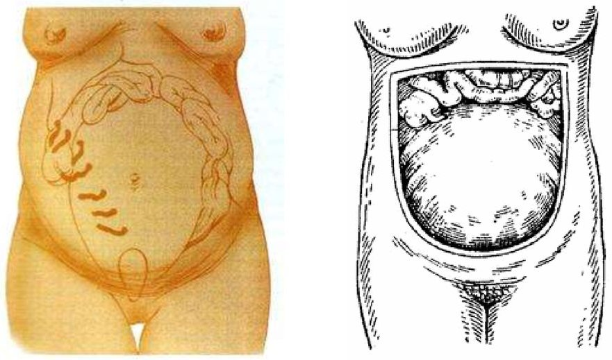 Изменение локализации отростка во время беременности