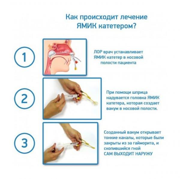 Лечение ЯМИК катетером