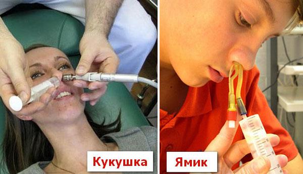 Методы промывания носа при гайморите