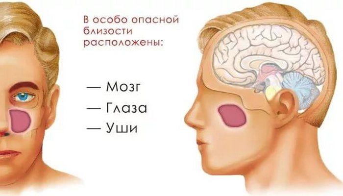 На каких органах может отразиться гайморит у детей