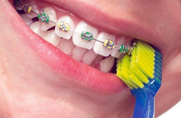 Ортодонтическая зубная щетка