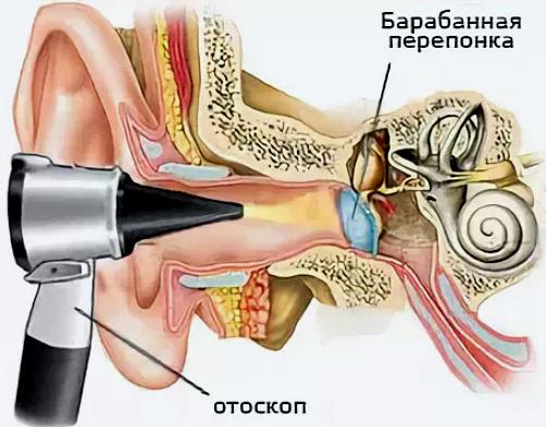 Осмотр уха отоскопом (отоскопия)