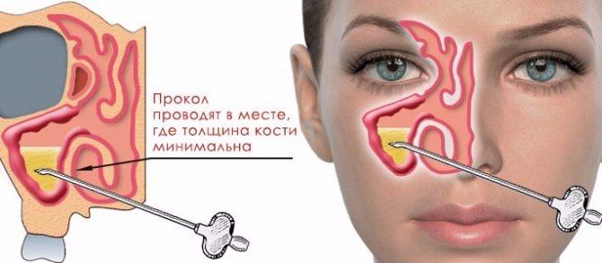 Пункция пазухи при гайморите