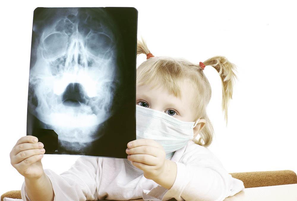 Рентгенологическое исследование гайморита