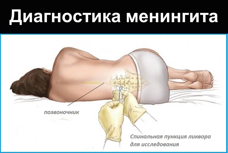 Спинальная пункция при менингите