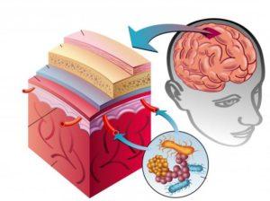 Воспаление мозговых оболочек