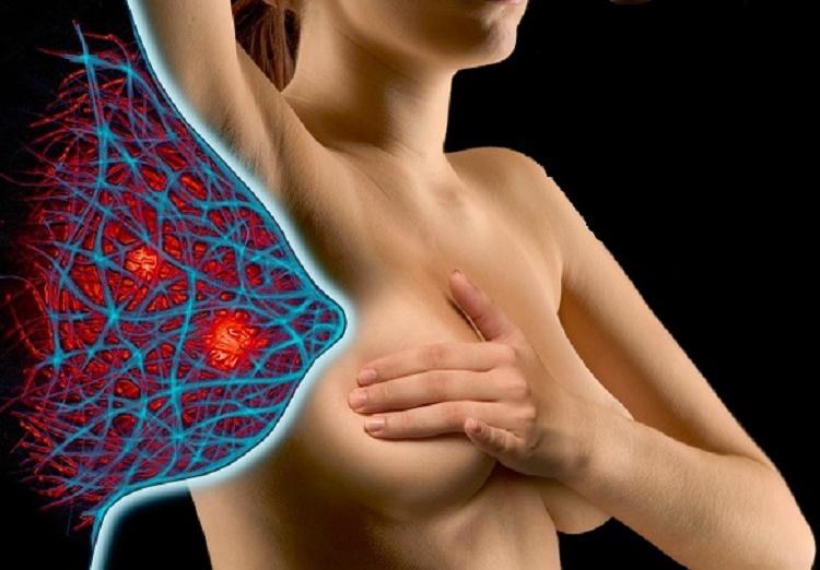 Заболевание груди у женщины