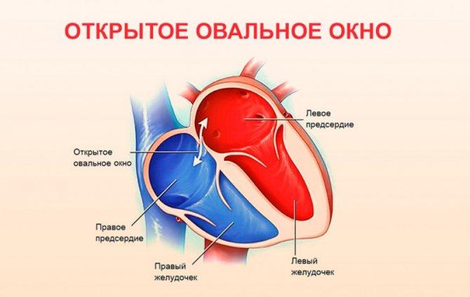 Открытое овальное окно в сердце