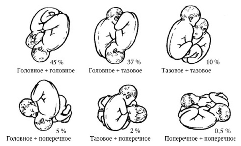 Варианты расположения плодов в матке