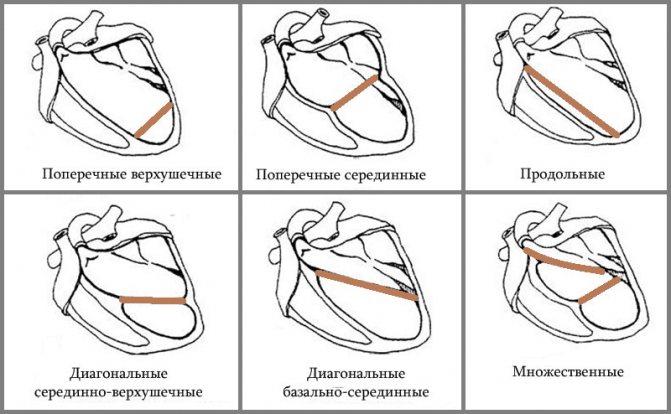 Виды хорд в сердце
