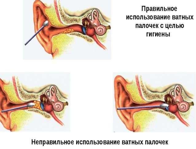 Как чистить уши ребенку