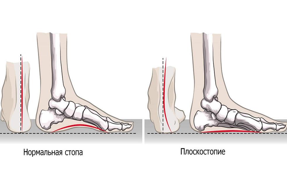 Нормальная стопа и плоскостопие