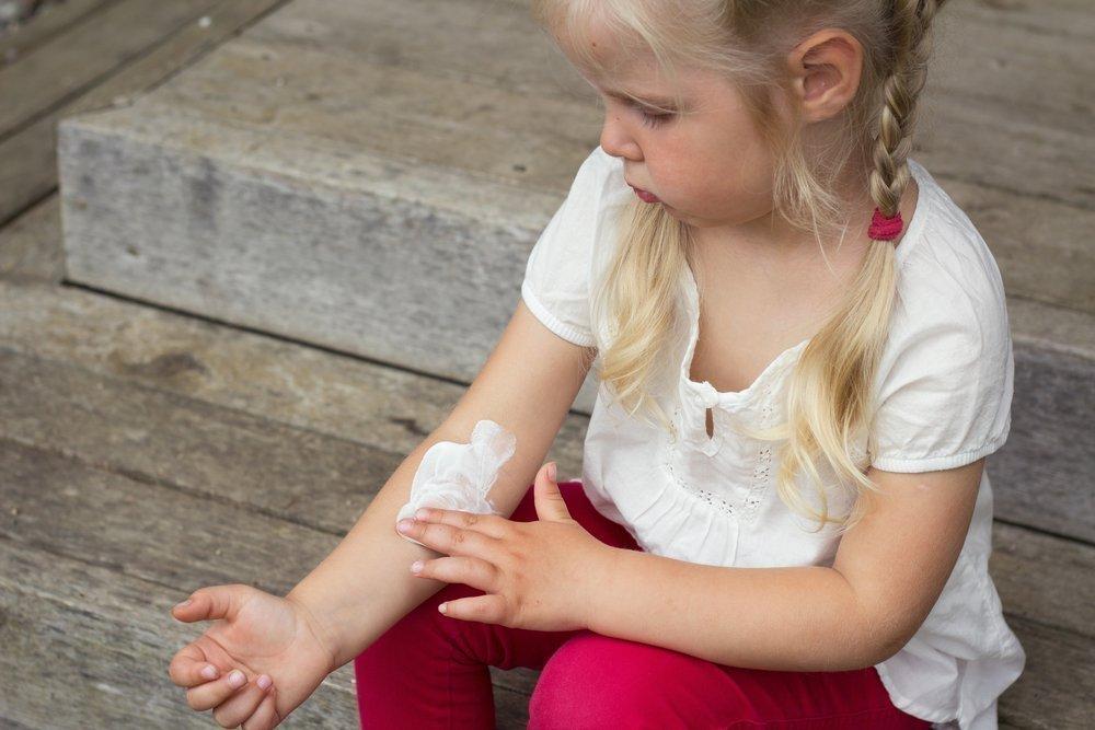 Экзему у ребенка необходимо лечить комплексно